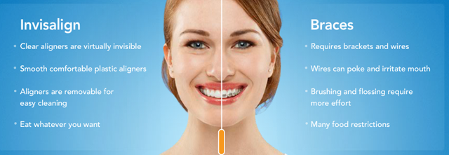 Invisalign-difference